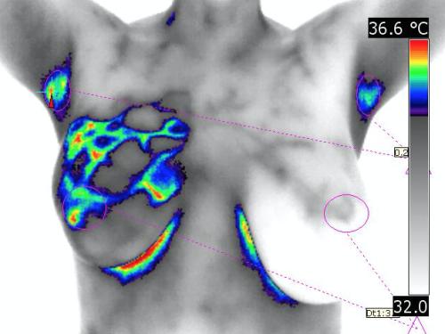 infraredmed-exame-mamografia-infravermelho